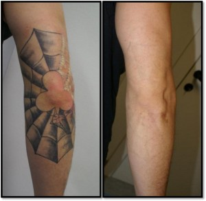 tattoo verwijderd